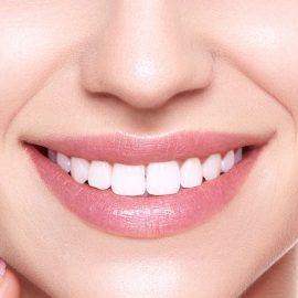 Igiene e sbiancamento denti trento