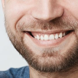 Protesi dentale TN